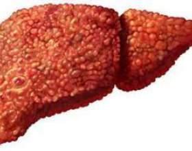 Як помирають від цирозу печінки фото