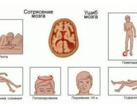 Чому алкоголь протипоказаний при струсі мозку? фото