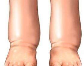 Чому болять ноги з похмілля? фото