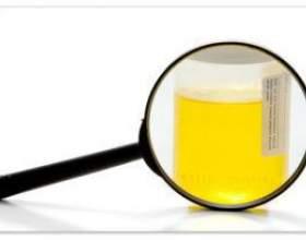 Скільки тримається алкоголь в сечі після пива, горілки, вина фото